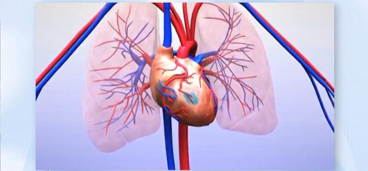 Angina pectoris – wenn das Herz schmerzt