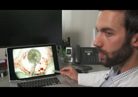 Hornhauttransplantation am Auge