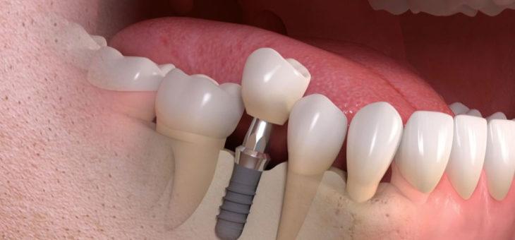Zahnimplantat oder Brücke?