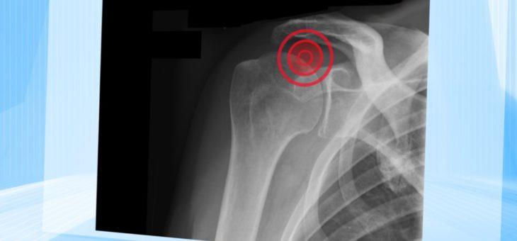 Steife Schulter – ein hartnäckiges Problem