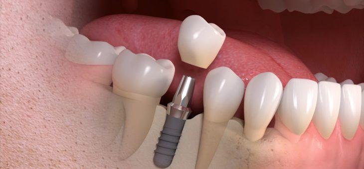 Risiken von Zahnimplantaten im Ausland