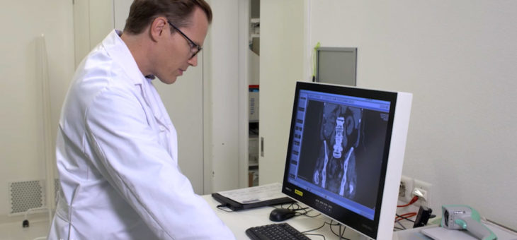 Neuer molekularer Urin-Test zum Nachweis von Blasenkrebs
