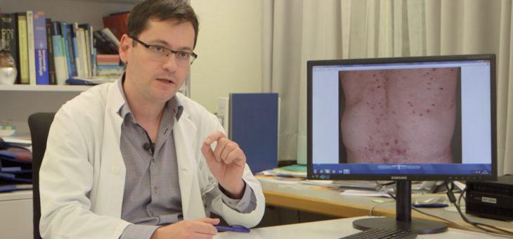 Atopische Dermatitis / Neurodermitis