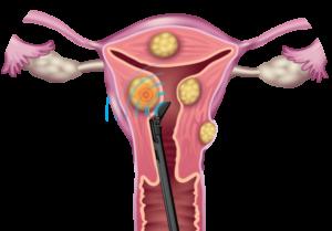 Wie krank myom gebärmutter entfernung lange OP einer