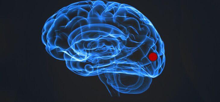 Neue Erkenntnisse bei Migräne