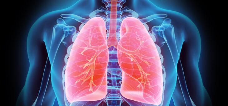 Wenn Rheuma die Lunge bedroht